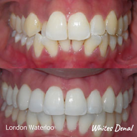 What are the quickest braces | Whites Dental