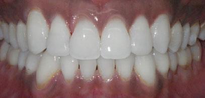 Invisalign Braces at Home | Whites Dental