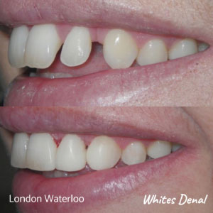 what are the quickest braces london | Whites Dental
