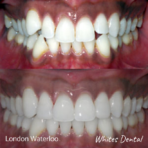 Can you feel teeth shifting with braces in london | Whites Dental