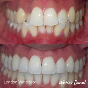 do fastbraces hurt more in london   Fixed Braces in London   Whites Dental