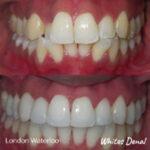 orthodontist london waterloo   Fixed Braces in London   Whites Dental
