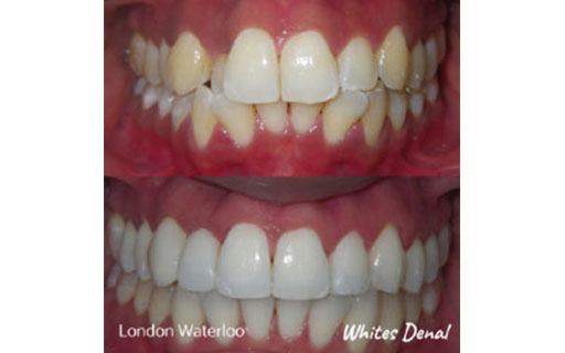 orthodontist london waterloo | Fixed Braces in London | Whites Dental