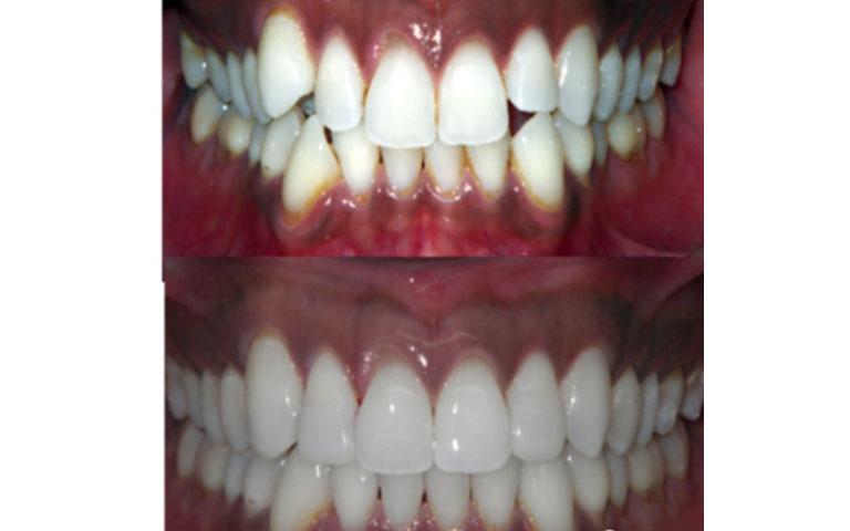 Do Fastbraces Hurt More | Orthodontic Braces in London