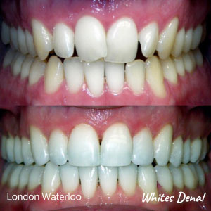 What is the fastest way to straighten teeth in london | Whites Dental