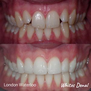 Do braces weaken teeth | Whites Dental