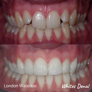 Do they whiten teeth after braces in london | Whites Dental