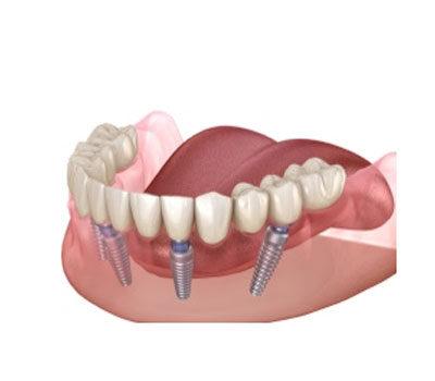 Dental Implant London Waterloo | Whites Dental