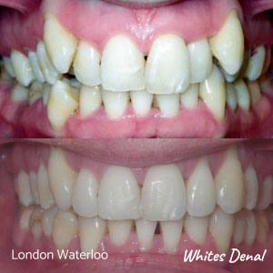 What can't you eat with braces in london| Whites Dental
