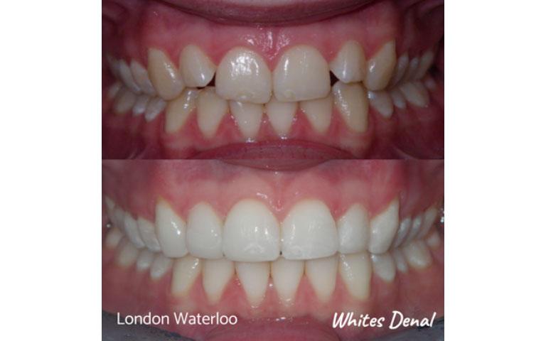cosmetic dentist in london waterloo   Whites Dental