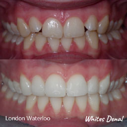 cosmetic dentist in london waterloo | Whites Dental