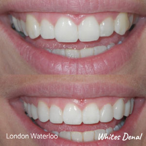 what are the pros and cons of veneers in london | Whites Dental