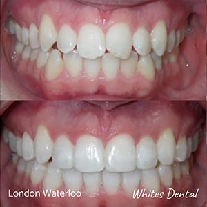 Orthodontic Braces & Invisalign In London