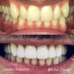 Invisalign braces, Orthodontist, Cosmetic Dentist, Reviews. London Waterloo